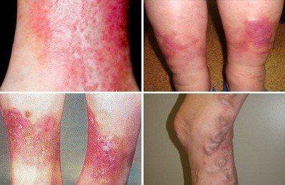 Венозный дерматит на ногах: лечение мазями и народными средствами