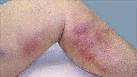 Венозный дерматит на ногах. Лечение заболевания • Жить здорово!