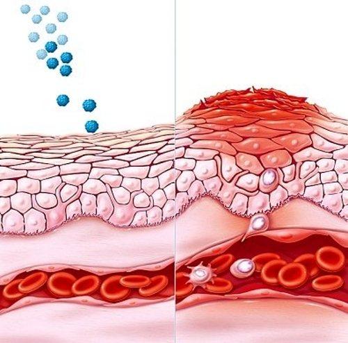 Выработка антител при аллергии